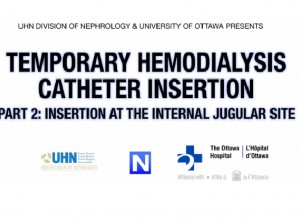 Temporary Hemodialysis Catheter Insertion PART 2: Insertion at the Jugular Site